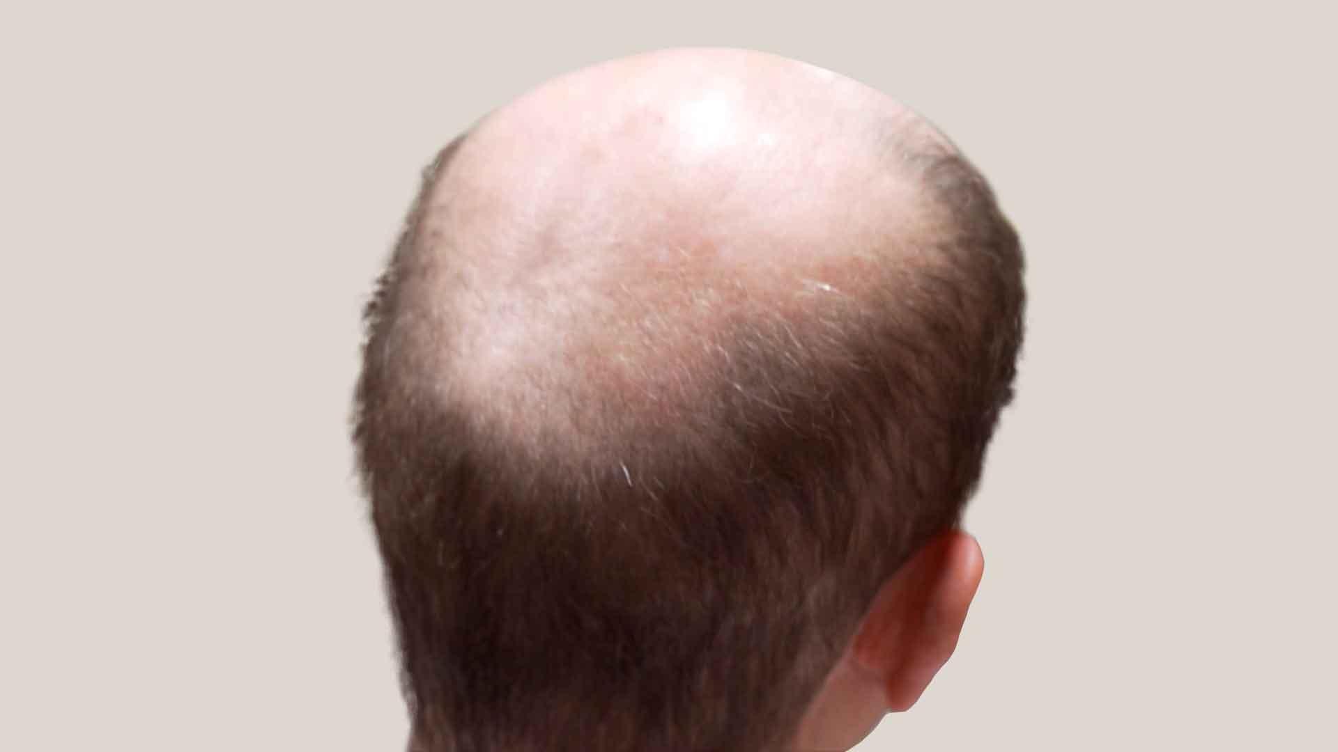 Prepare your scalp