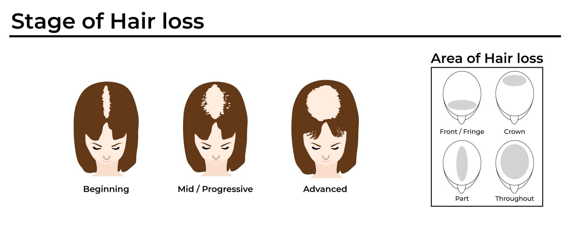 advanced stage of hair loss